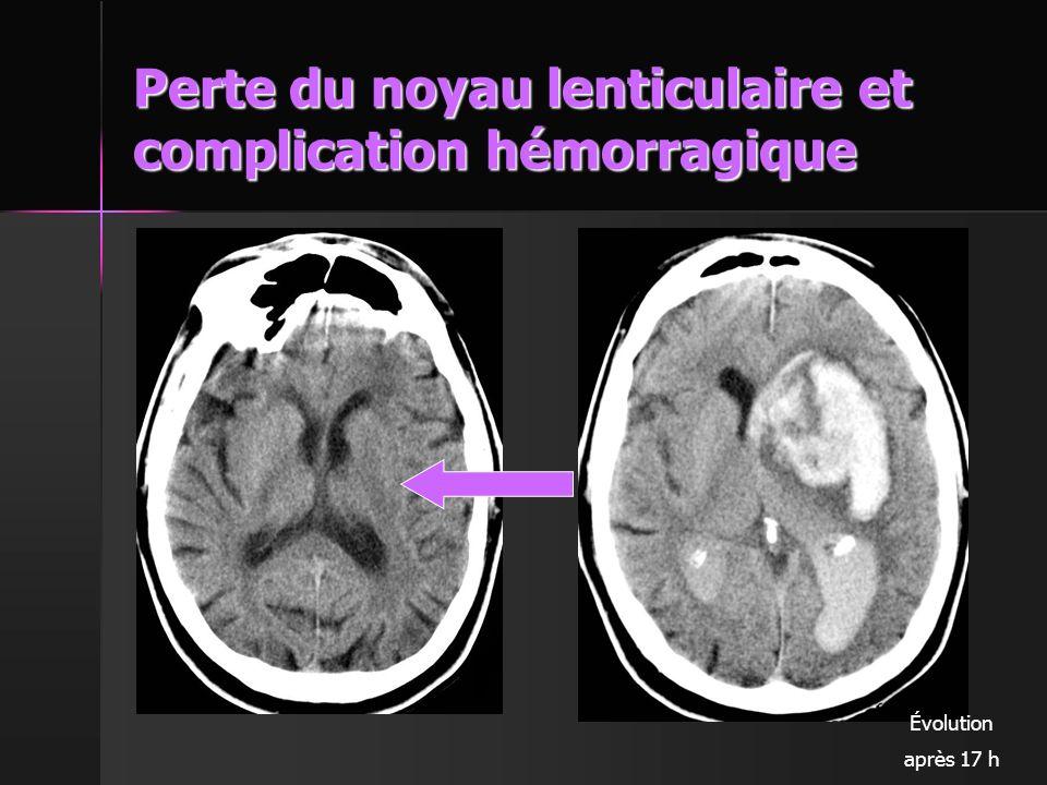 Perte du noyau lenticulaire et complication hémorragique
