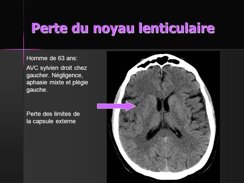 Perte du noyau lenticulaire