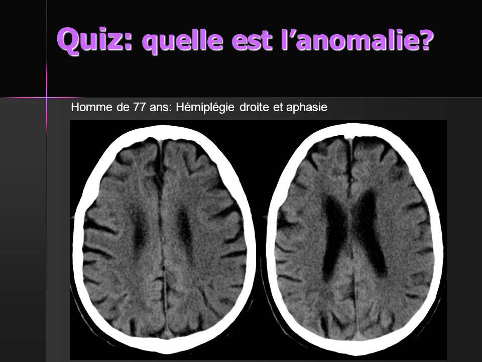 Quiz: quelle est l'anomalie