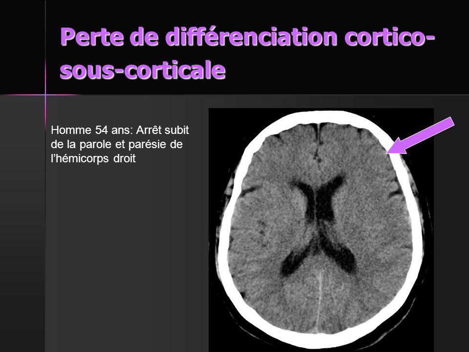 Perte de différenciation cortico-sous-corticale