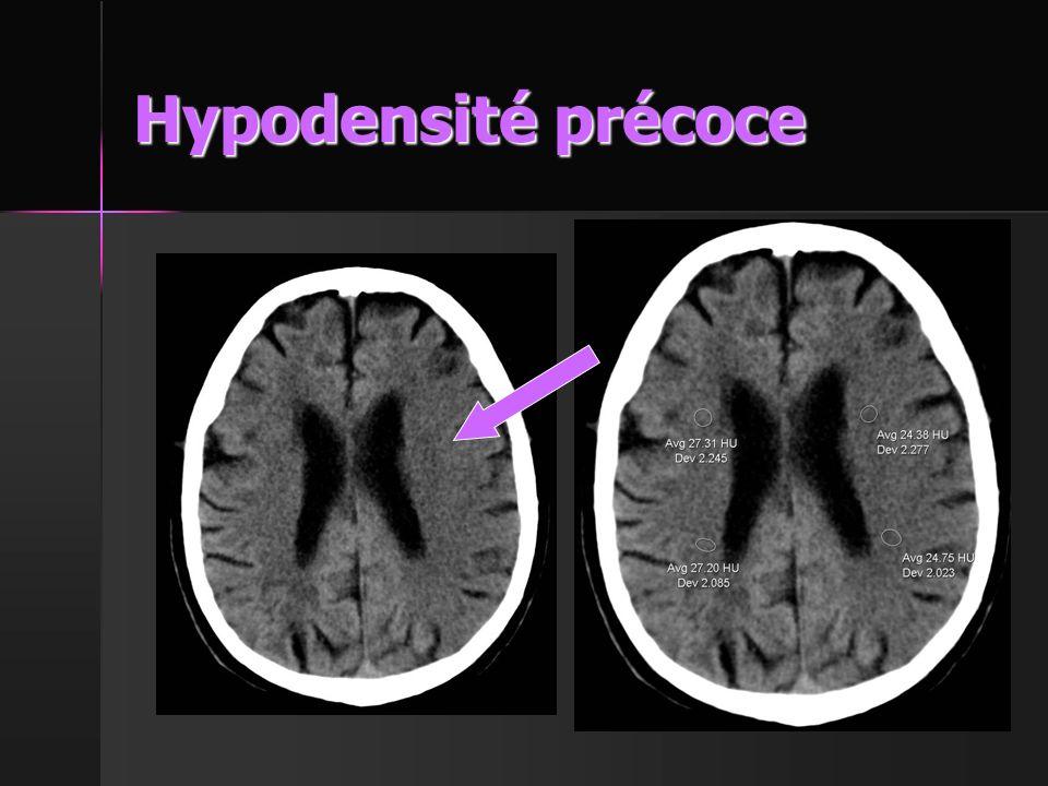 Hypodensité précoce 64N2073831 Homme 77 ans: Hémiplégie droite et aphasie Exemple No 8