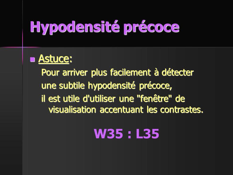 Hypodensité précoce W35 : L35 Astuce: