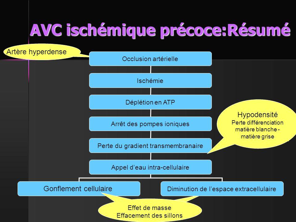 AVC ischémique précoce:Résumé
