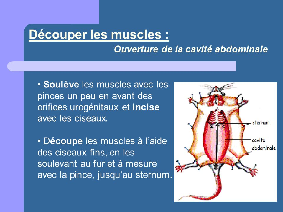 Découper les muscles : Ouverture de la cavité abdominale