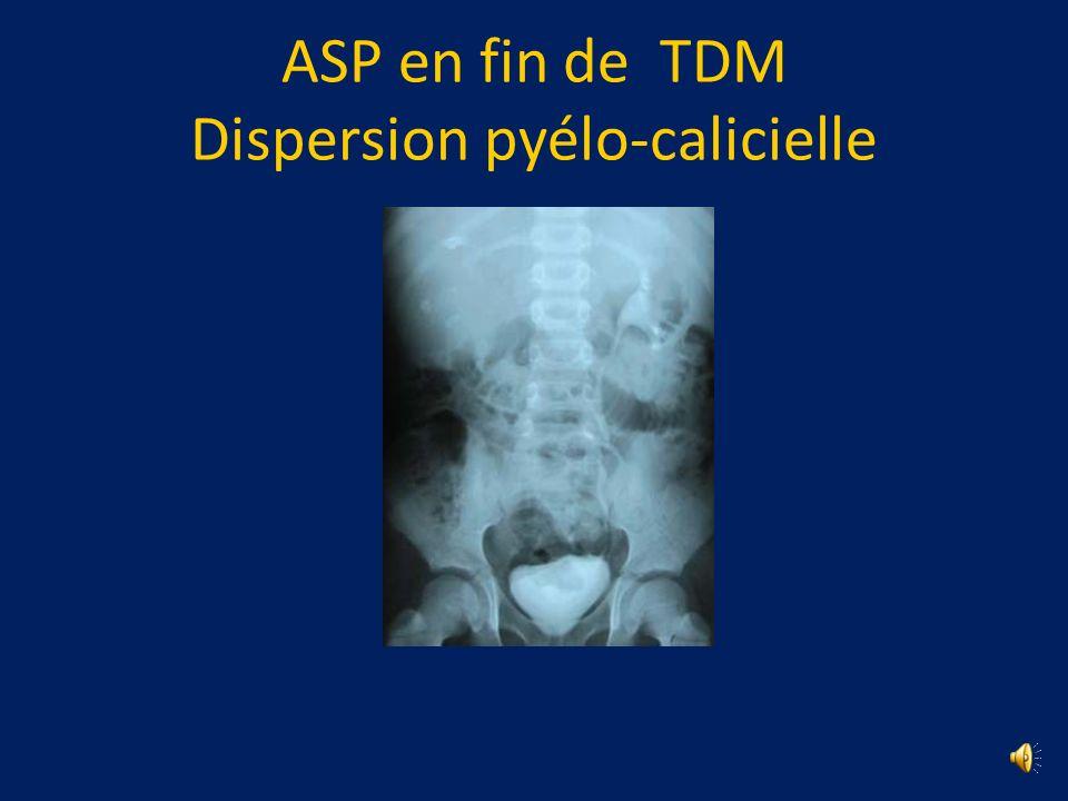 ASP en fin de TDM Dispersion pyélo-calicielle