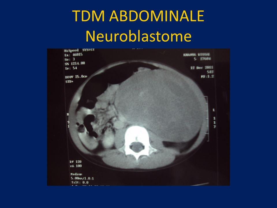 TDM ABDOMINALE Neuroblastome