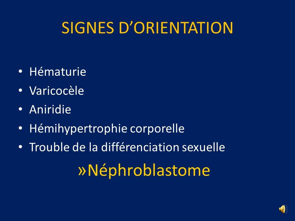 SIGNES D'ORIENTATION Néphroblastome Hématurie Varicocèle Aniridie