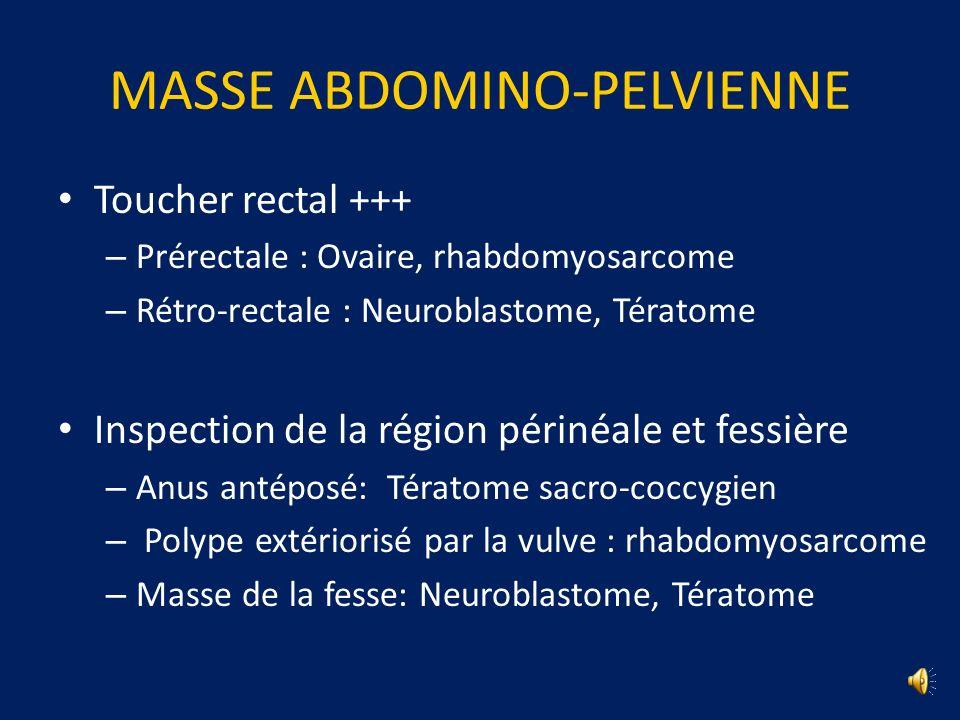 MASSE ABDOMINO-PELVIENNE