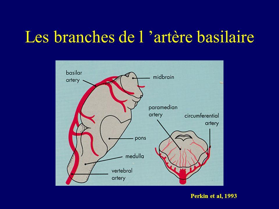 Les branches de l 'artère basilaire