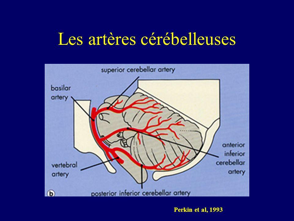 Les artères cérébelleuses