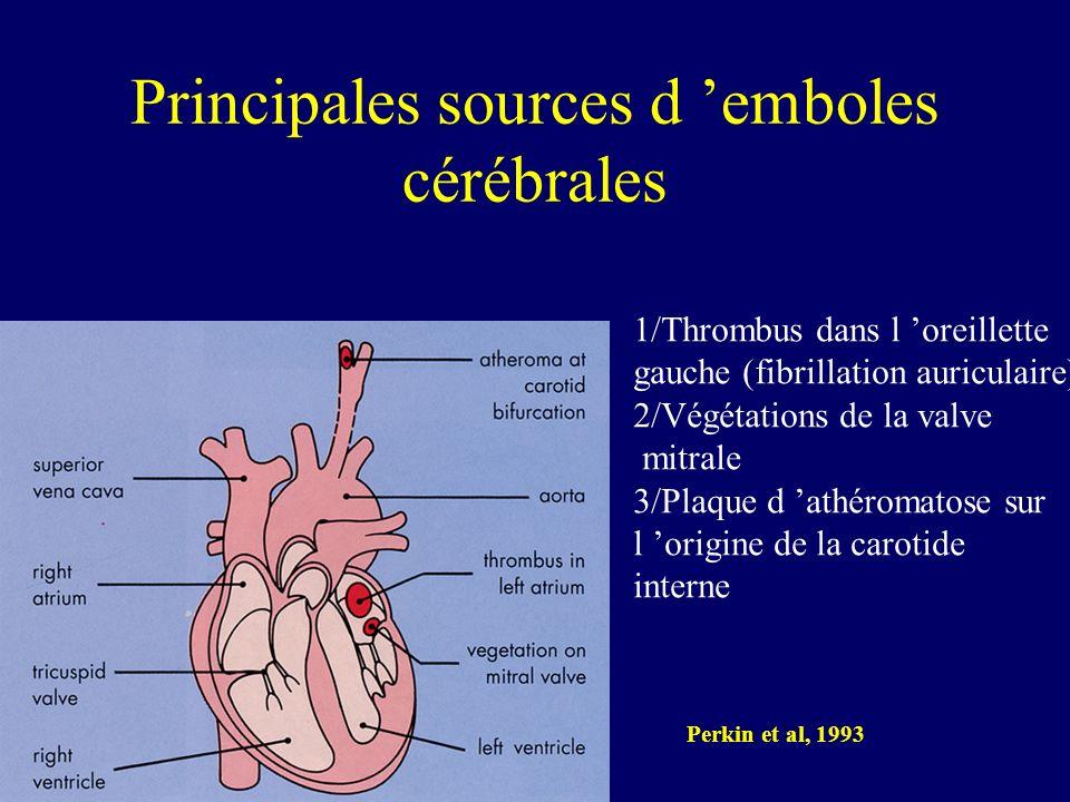 Principales sources d 'emboles cérébrales