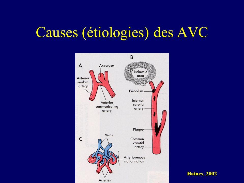 Causes (étiologies) des AVC