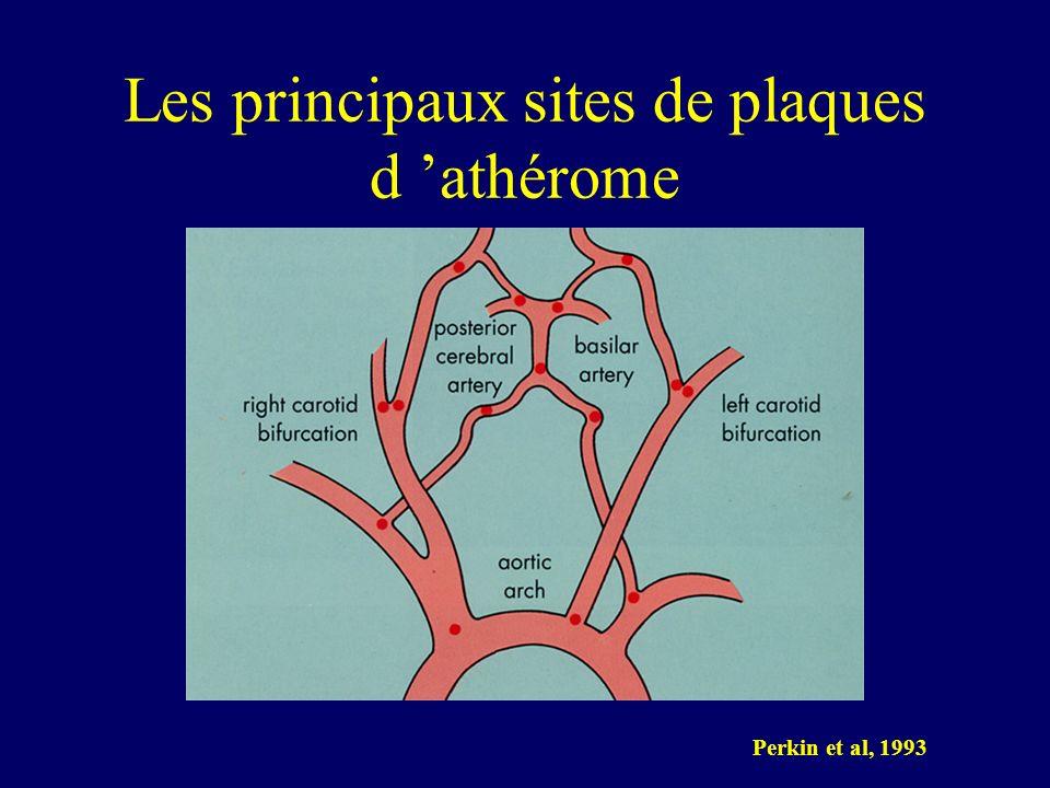 Les principaux sites de plaques d 'athérome