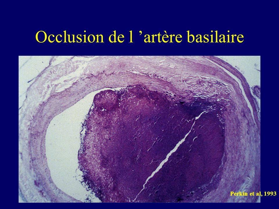 Occlusion de l 'artère basilaire