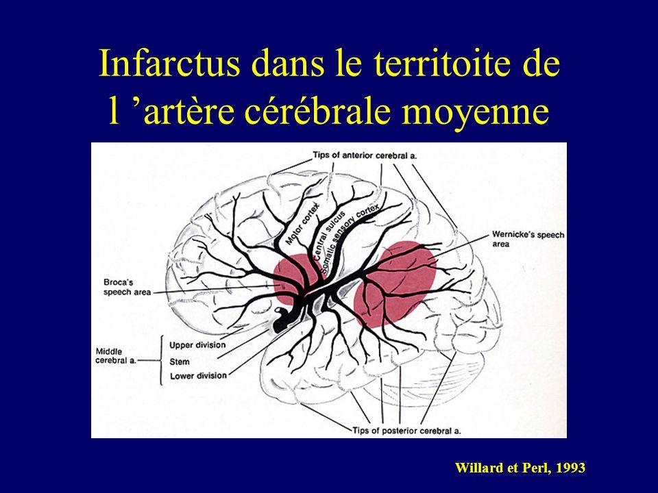 Infarctus dans le territoite de l 'artère cérébrale moyenne