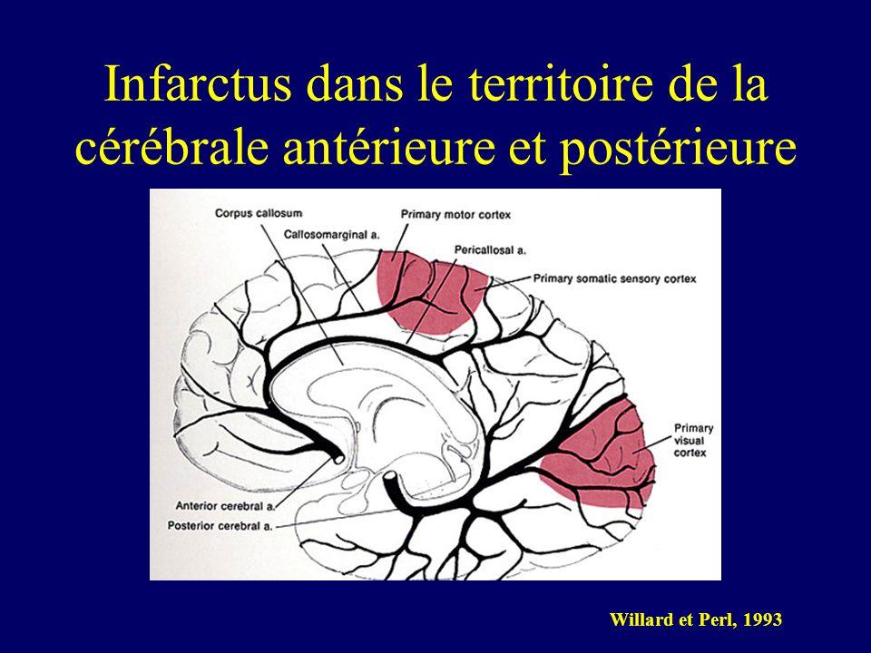 Infarctus dans le territoire de la cérébrale antérieure et postérieure