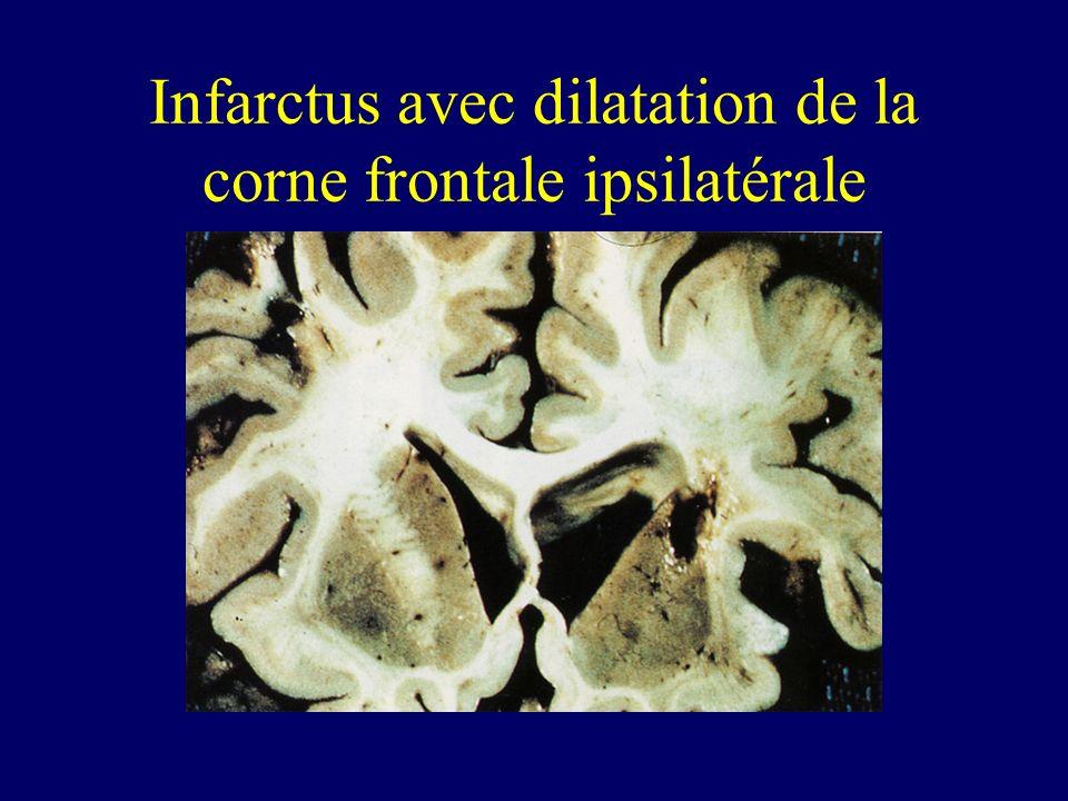 Infarctus avec dilatation de la corne frontale ipsilatérale