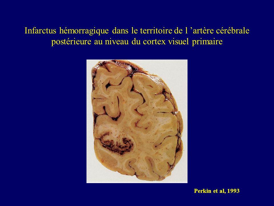 Infarctus hémorragique dans le territoire de l 'artère cérébrale postérieure au niveau du cortex visuel primaire