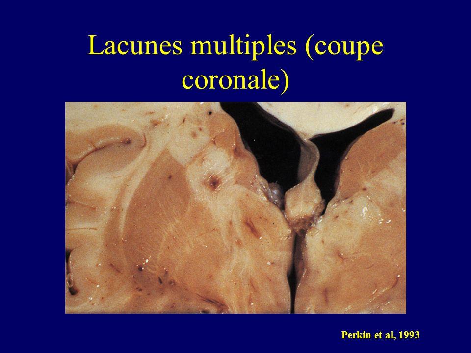 Lacunes multiples (coupe coronale)