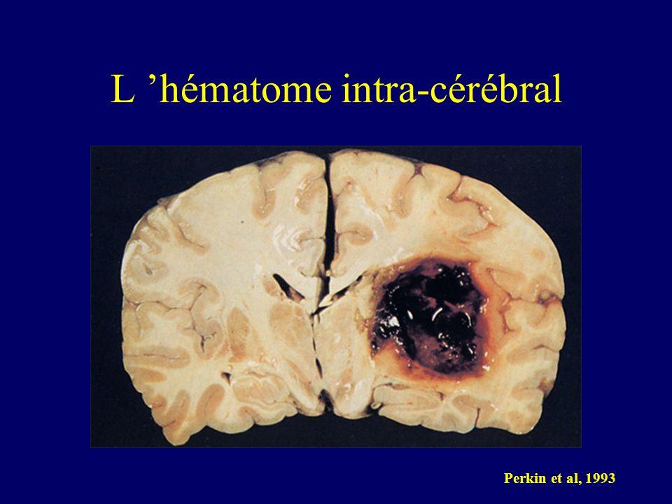 L 'hématome intra-cérébral