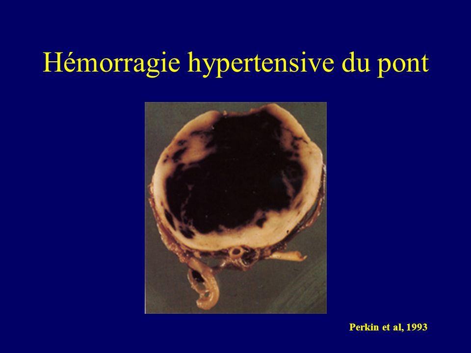 Hémorragie hypertensive du pont