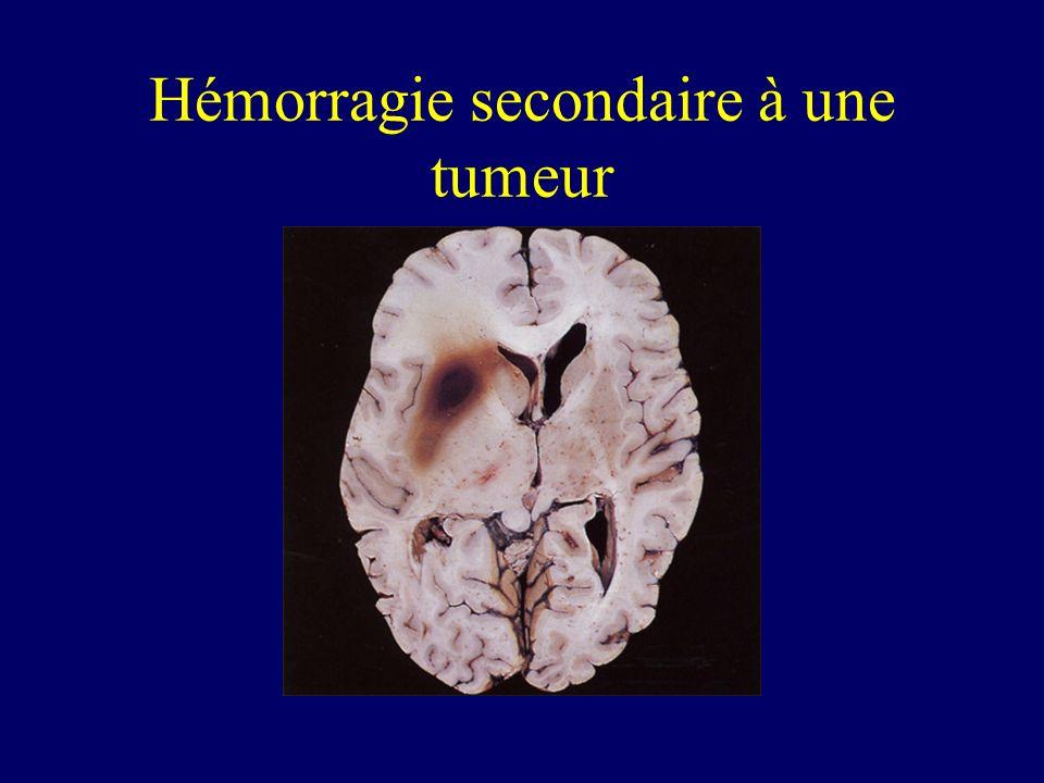 Hémorragie secondaire à une tumeur