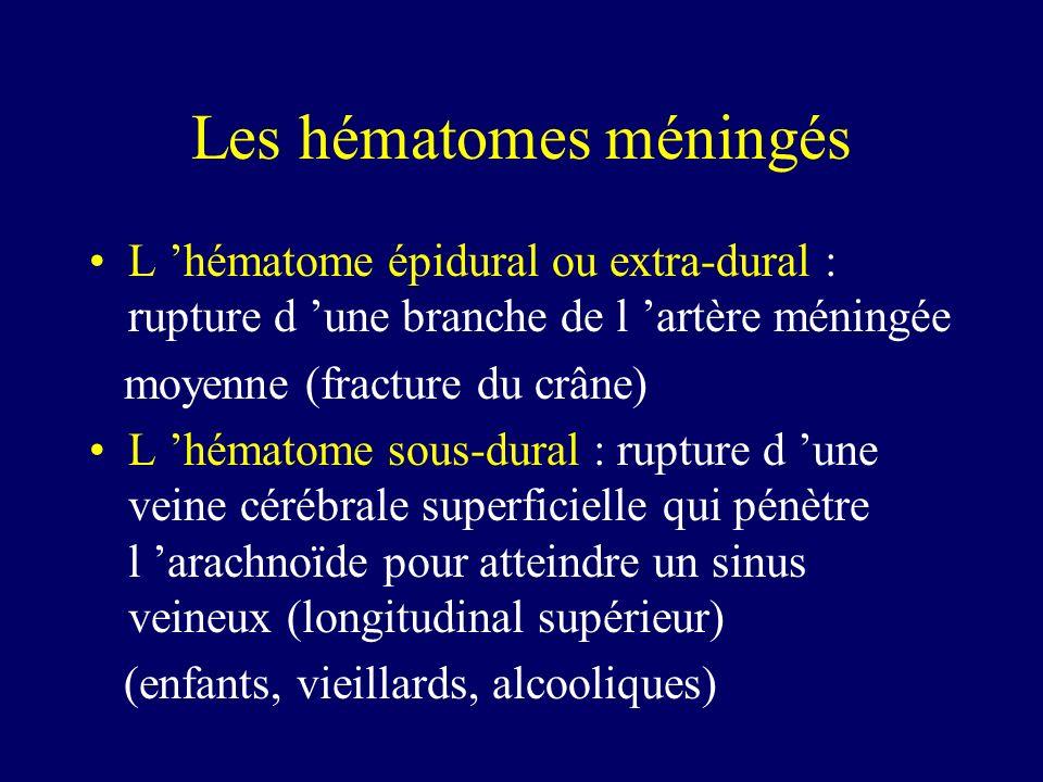 Les hématomes méningés