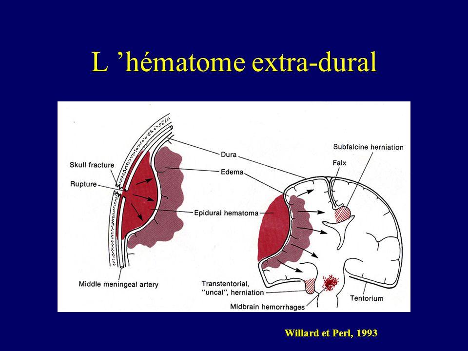 L 'hématome extra-dural