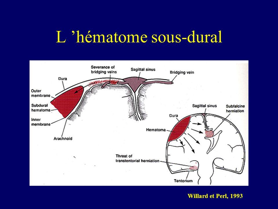 L 'hématome sous-dural