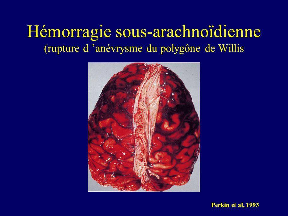 Hémorragie sous-arachnoïdienne (rupture d 'anévrysme du polygône de Willis