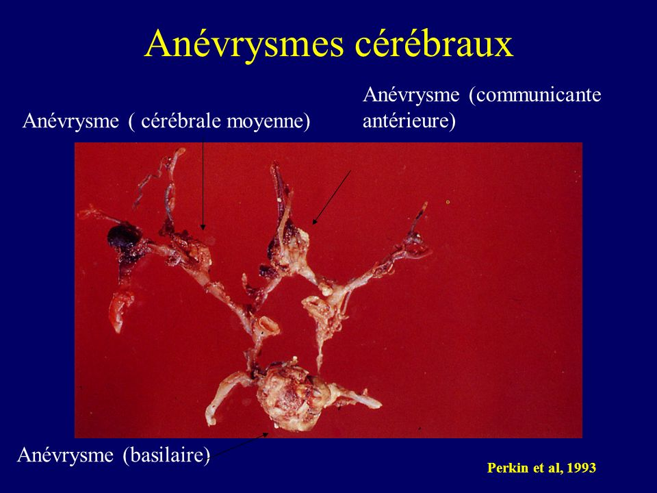 Anévrysmes cérébraux Anévrysme (communicante antérieure)