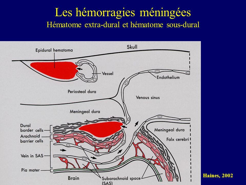 Les hémorragies méningées Hématome extra-dural et hématome sous-dural