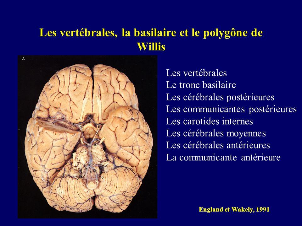 Les vertébrales, la basilaire et le polygône de Willis