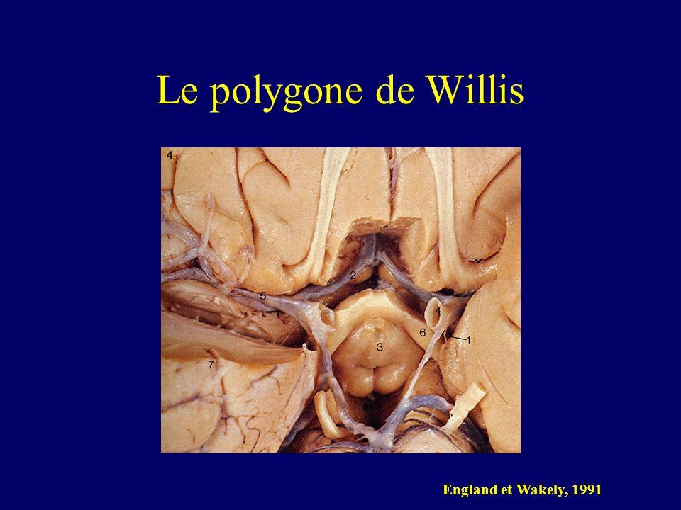 Le polygone de Willis England et Wakely, 1991