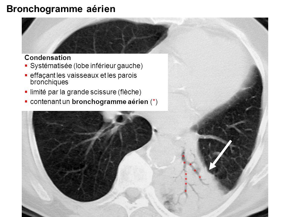 Bronchogramme aérien * Condensation
