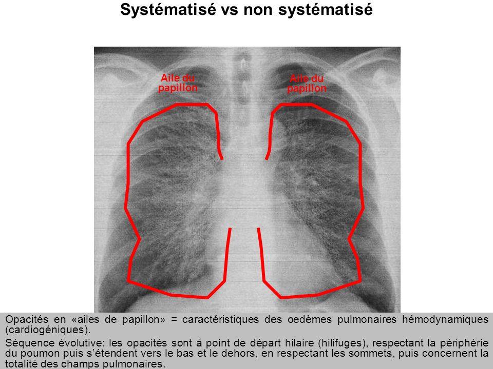 Systématisé vs non systématisé
