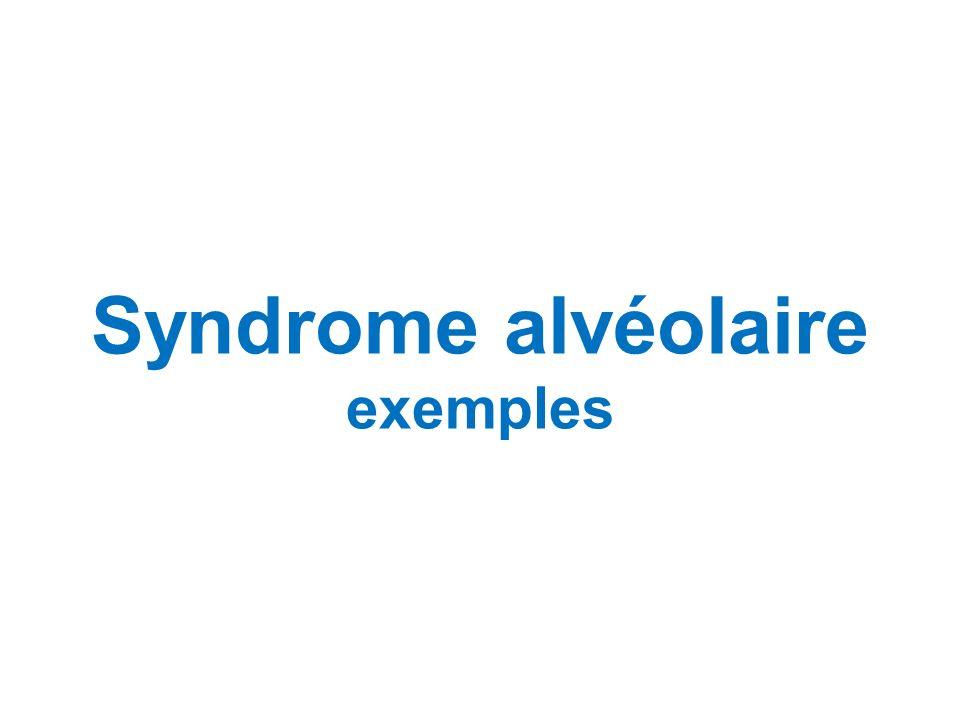Syndrome alvéolaire exemples