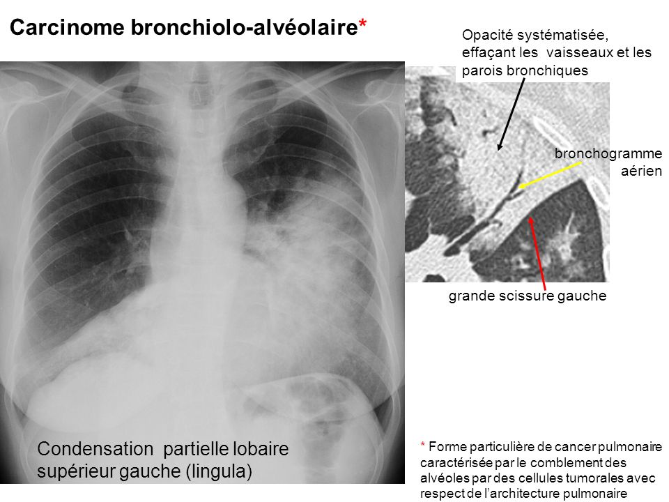 Carcinome bronchiolo-alvéolaire*