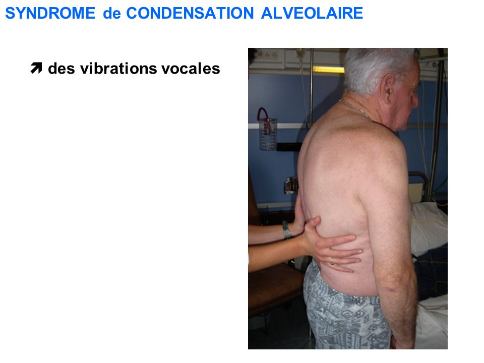 SYNDROME de CONDENSATION ALVEOLAIRE