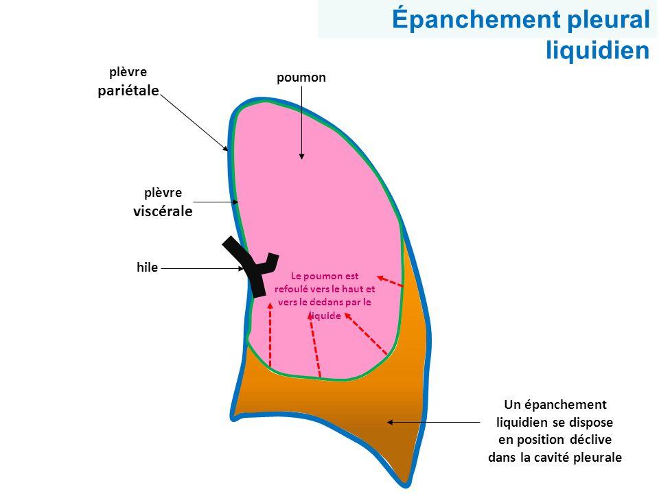 Le poumon est refoulé vers le haut et vers le dedans par le liquide