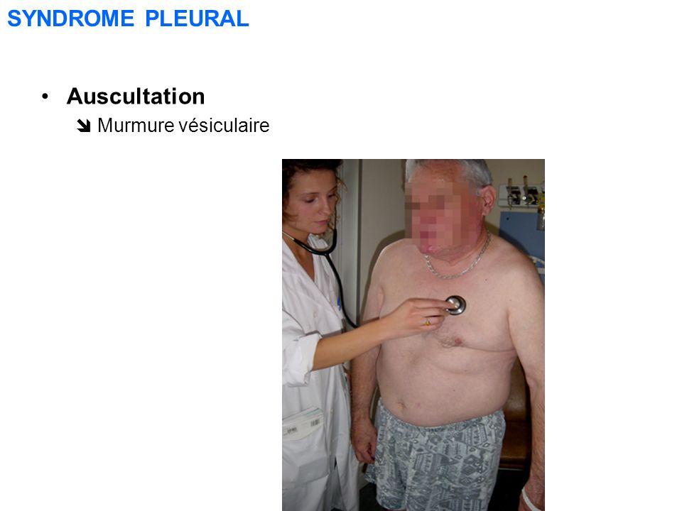 SYNDROME PLEURAL Auscultation  Murmure vésiculaire