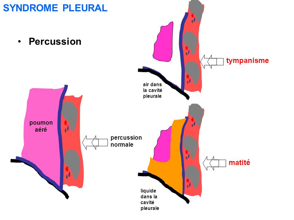 SYNDROME PLEURAL Percussion tympanisme matité poumon aéré