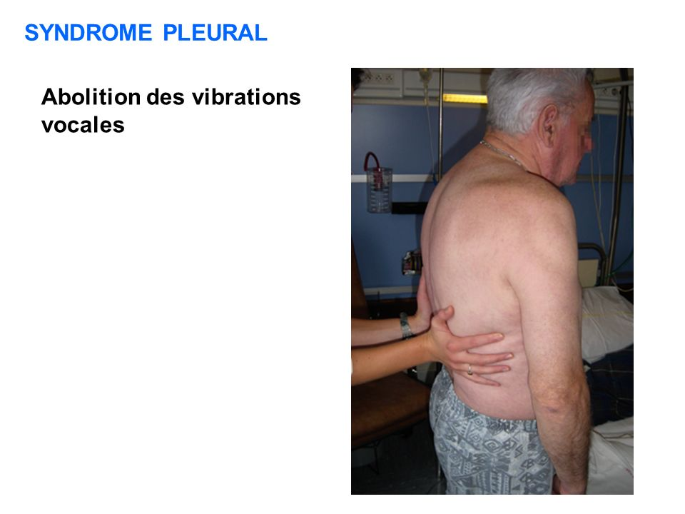 SYNDROME PLEURAL Abolition des vibrations vocales