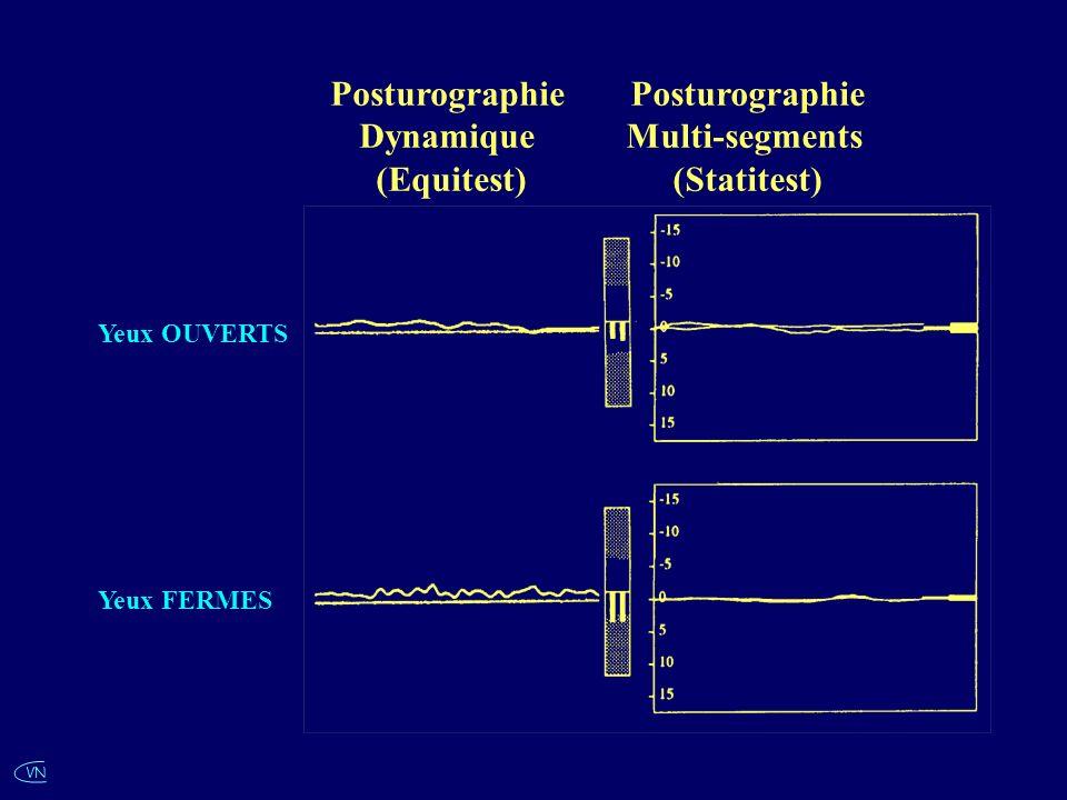 Posturographie Dynamique (Equitest) Posturographie Multi-segments