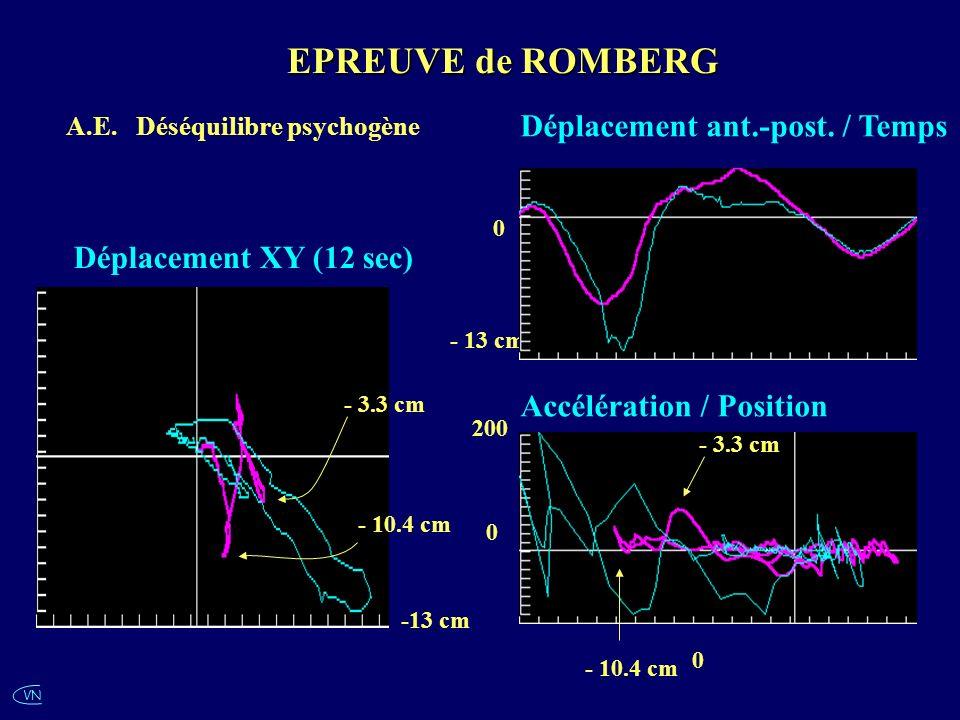 EPREUVE de ROMBERG Déplacement ant.-post. / Temps
