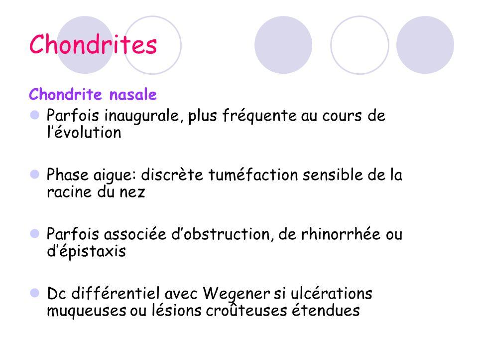 Chondrites Chondrite nasale