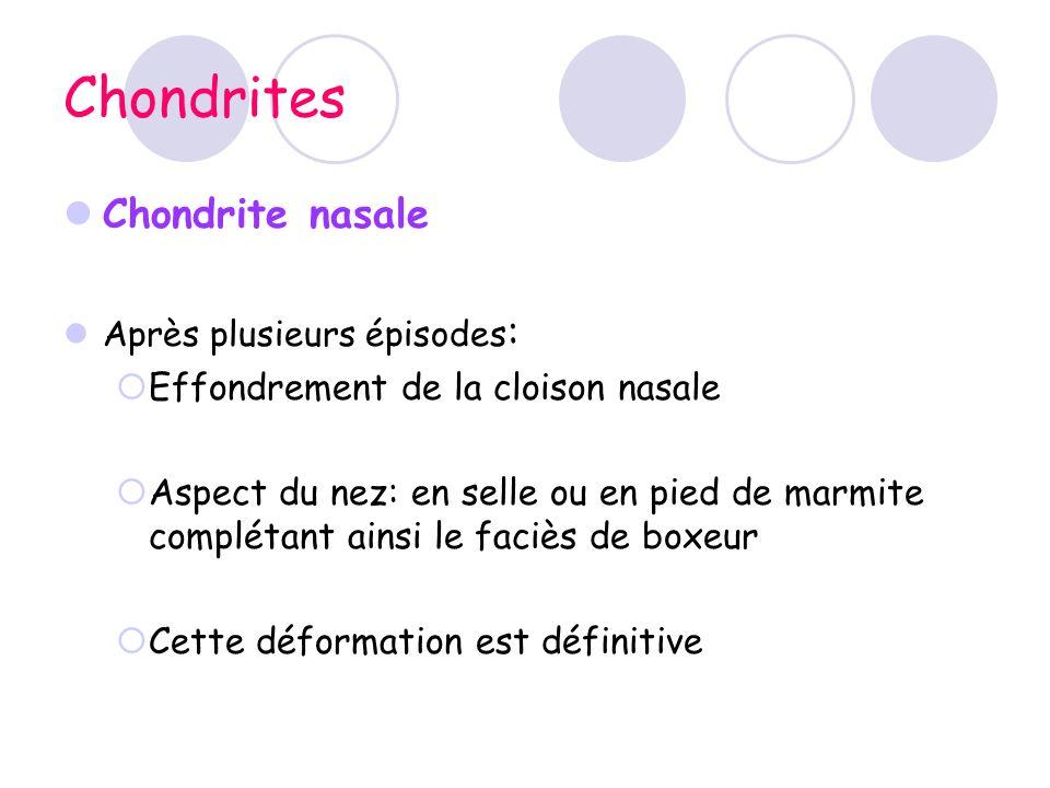 Chondrites Chondrite nasale Effondrement de la cloison nasale