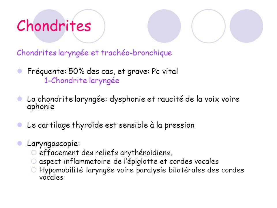 Chondrites Chondrites laryngée et trachéo-bronchique