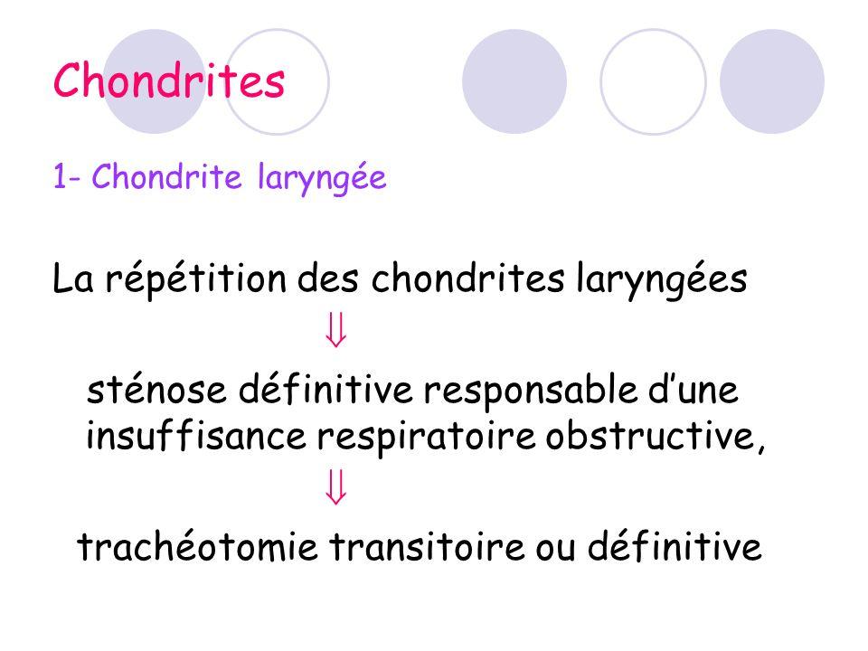 Chondrites La répétition des chondrites laryngées 
