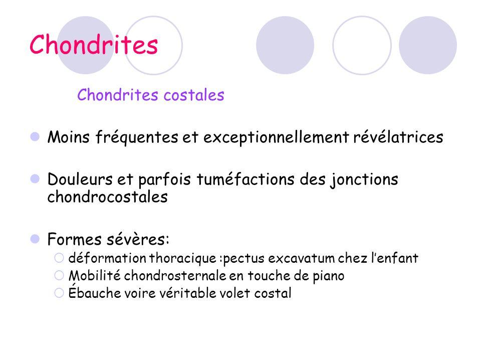 Chondrites Chondrites costales